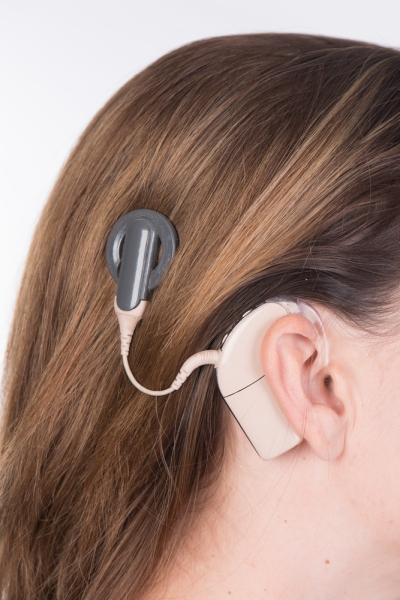 A cochlear implant is shown on the right side of a woman's head and a hearing aid is over her ear.